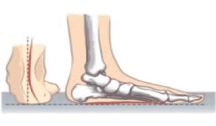 ankle pronation in kids feet, feet turn inwards