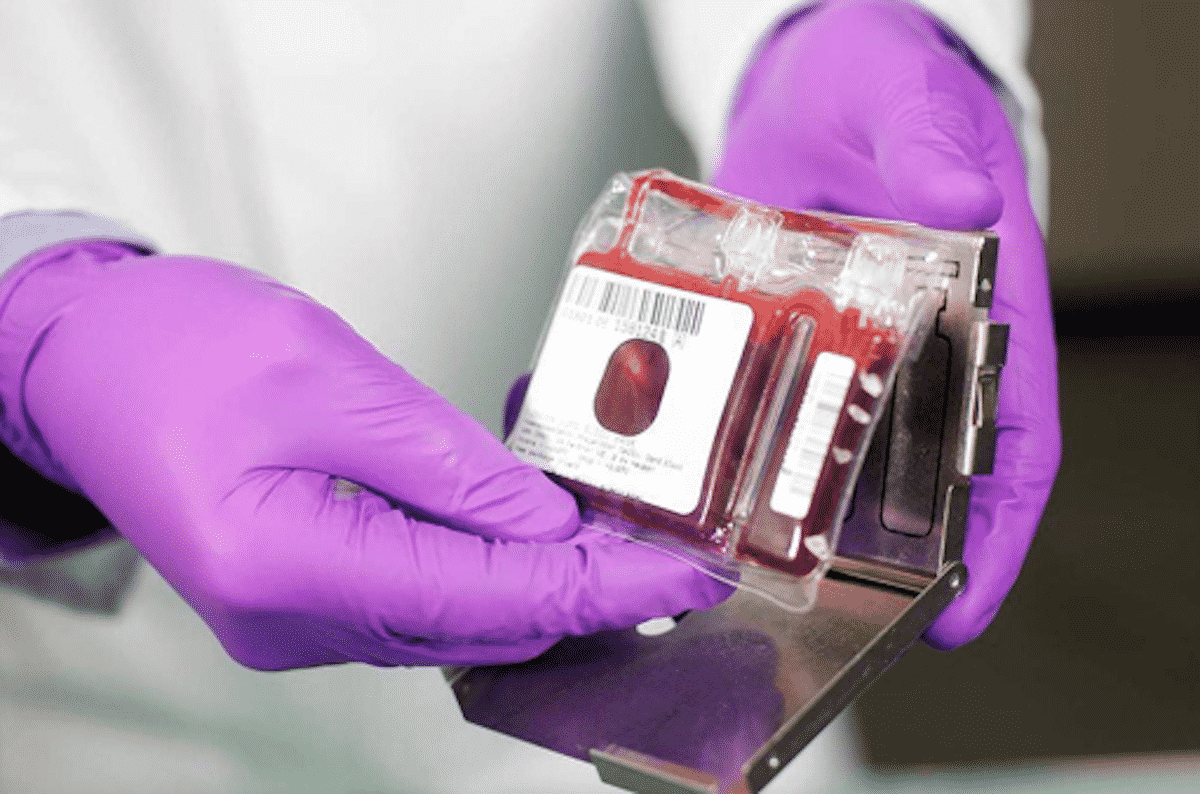 Photo of Preserving a Life-line: Things to Know Before Choosing a Cord Blood Bank